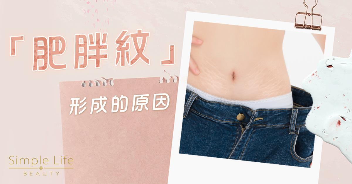 消除肥胖紋